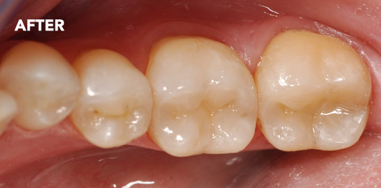 White-Fillings-After