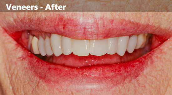 discoloured-teeth-After