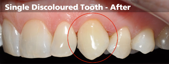 single-discoloured-tooth-after