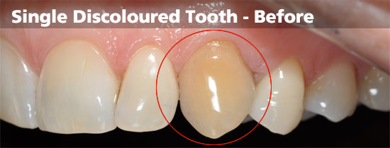single-discoloured-tooth-before
