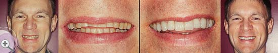 Pukekohe-Dental-smile-gallery-04