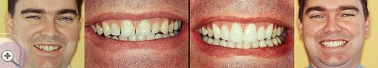 Pukekohe-Dental-smile-gallery-05